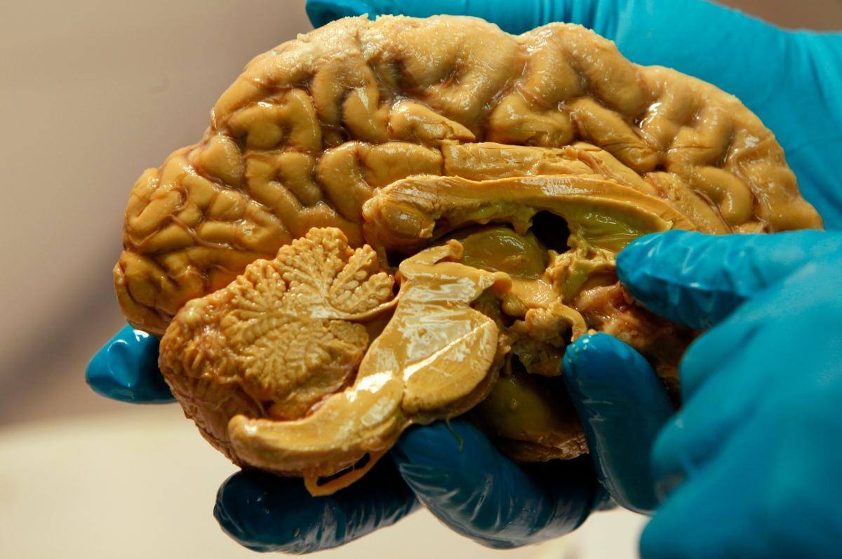 Da, zaista postoji anatomska razlika između mozga ljevičara i desničara: amigdala